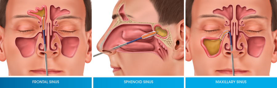 Image Result For Sinus Drainage In Ear