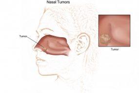 Nasal Tumor Removal